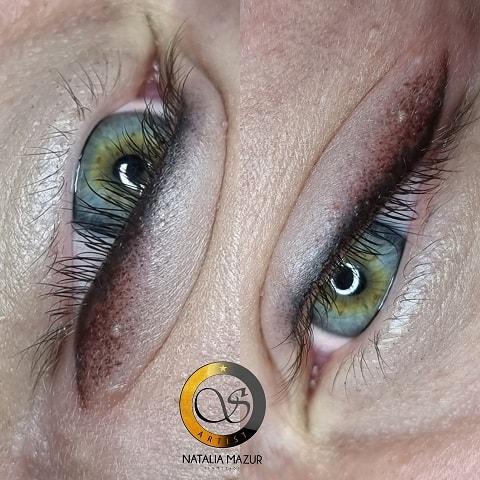 efekty naszych zabiegów Gabinet Kosmetologii Profesjonalne Natalia Mazur Ornotowice (3)