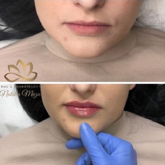 efekty zabieków - Gabinet Kosmetologii Profesjonalnej Natalia Mazur - Ornotowice (11)