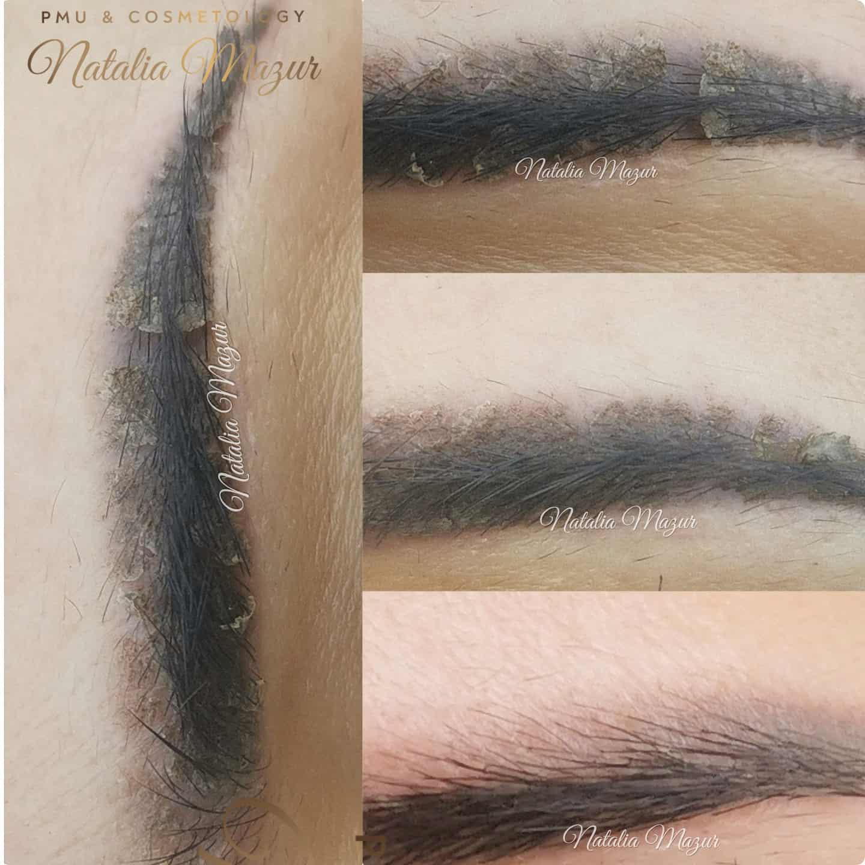 zdjecie faz gojenia - gabinet kosmetologii profesjonalnej Natalia Mazur